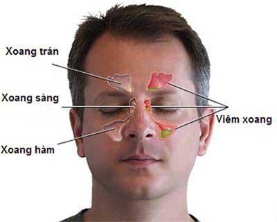Bệnh xoang mũi